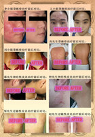 skin cream - Get rid of Eczema Dermatitis once and forever Chinese herbal skin cream