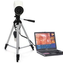Wholesale Portable Digital Video Electronic Colposcope RCS SONY pixels CE FDA