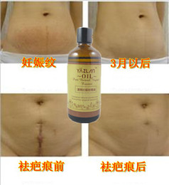 Wholesale Genuine Essential oils Get rid stretch marks Scar Obesity pattern Whitening Lose weight Effective Firming SkinMaternity Postpartum repair