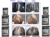 Wholesale Hair Loss Product Conceal Keratin Building Hair Fibers Black Dark Medium Light Brown Natural G Powders Spray colors