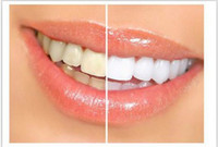 Wholesale NEW Personal Care Teeth Whitening Pen big sale