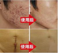anti aging - Nuobisong Remove repair Scar Cream Remove Acne Spots Remove Striae Gravidarum Pigmentation Corrector Anti Aging Moisturizing
