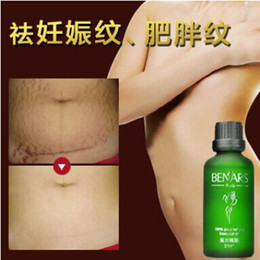 Wholesale Striae gravid reapair Powerful to Stretch Marks Essential Oils Skin Treatment Care Cream For Stretch Marks Obesity Postpartum Repair Cream