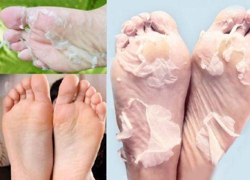 쌍 엑스 폴리 에이 팅 발 마스크 부드러운 발은 하드 죽은 피부를 제거 2pcs = 한 쌍