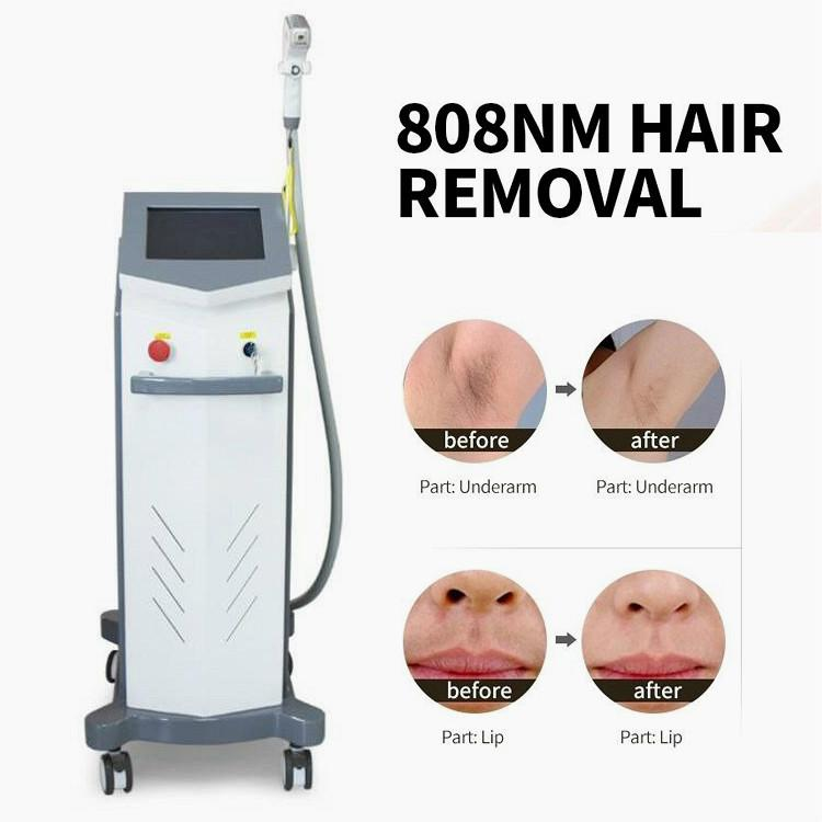 A remoção 808nm Diode depilação permanente Laser remoção máquina de redução do cabelo do laser indolor beleza equipamentos Laser Máquina de cabelo para