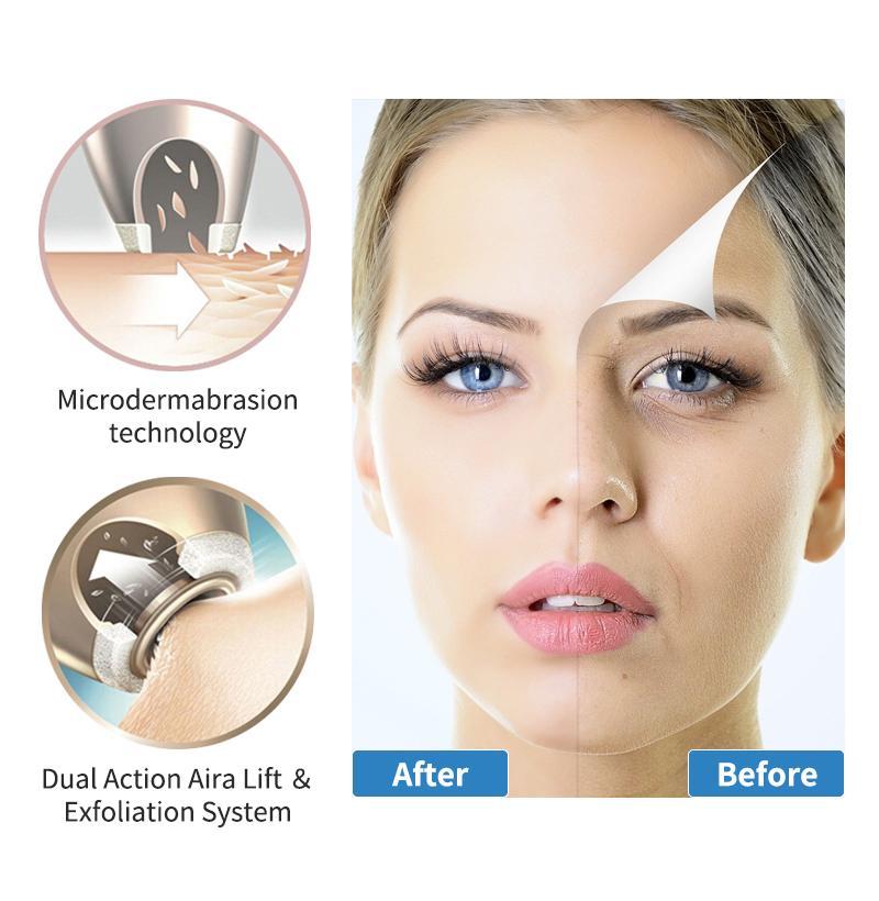 Newdermo Microdermoabrasão Sistema Diamante dermoabrasão máquina Beauty Anti Aging