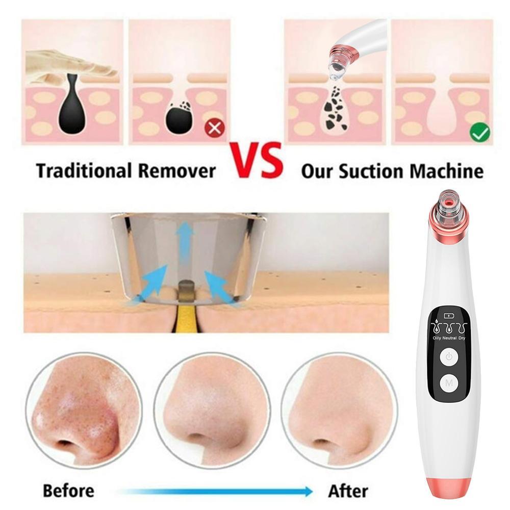 USB Rechargeable Visual Blackhead Remover Facial Pores Black Head Cleaner Vacuum Suction Pore Cleaner WIFI Microscope CameraRabi