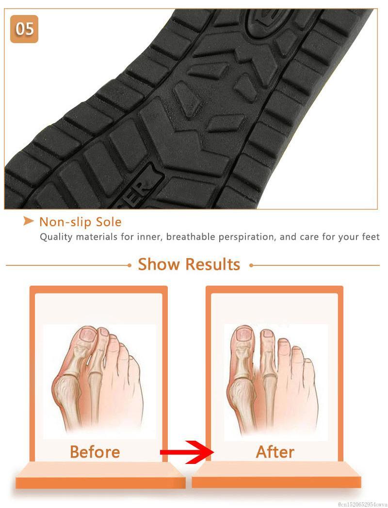 Bırak Gemi Sıcak Yaz Büyük Burun Düzeltme Burun Ayırıcı Ayakkabı Rahat Platformu Sandal Sandalet Ortopedik PU Ayak Bakım Aracı Ayakkabı