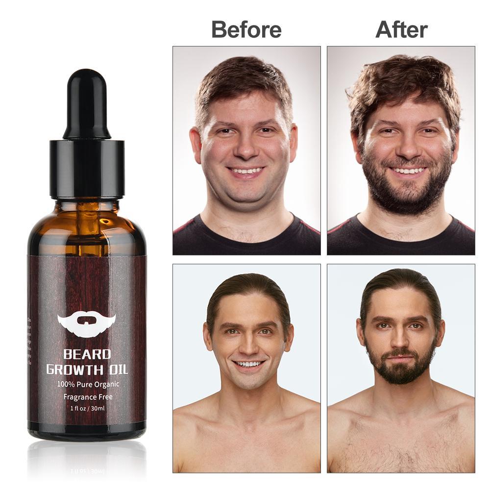KIT KIT BOARD ROSTOR BARBER ENHANCER Усилитель роста волос Борода Бороды Рост нефтяной сыворотки Питательный эфирный масло лица.