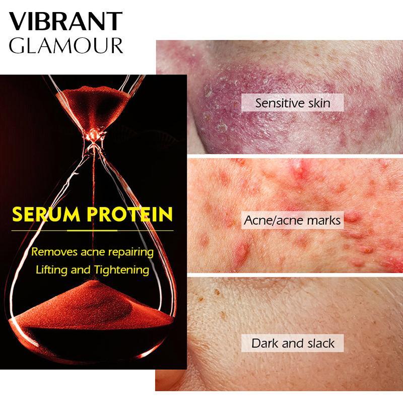5pcs VIBRANT GLAMOUR Serum Protein Anti Aging Dehydrated Mask Acne Treatment Improve Fine Lines Moisturizer Nourishing Skin Care