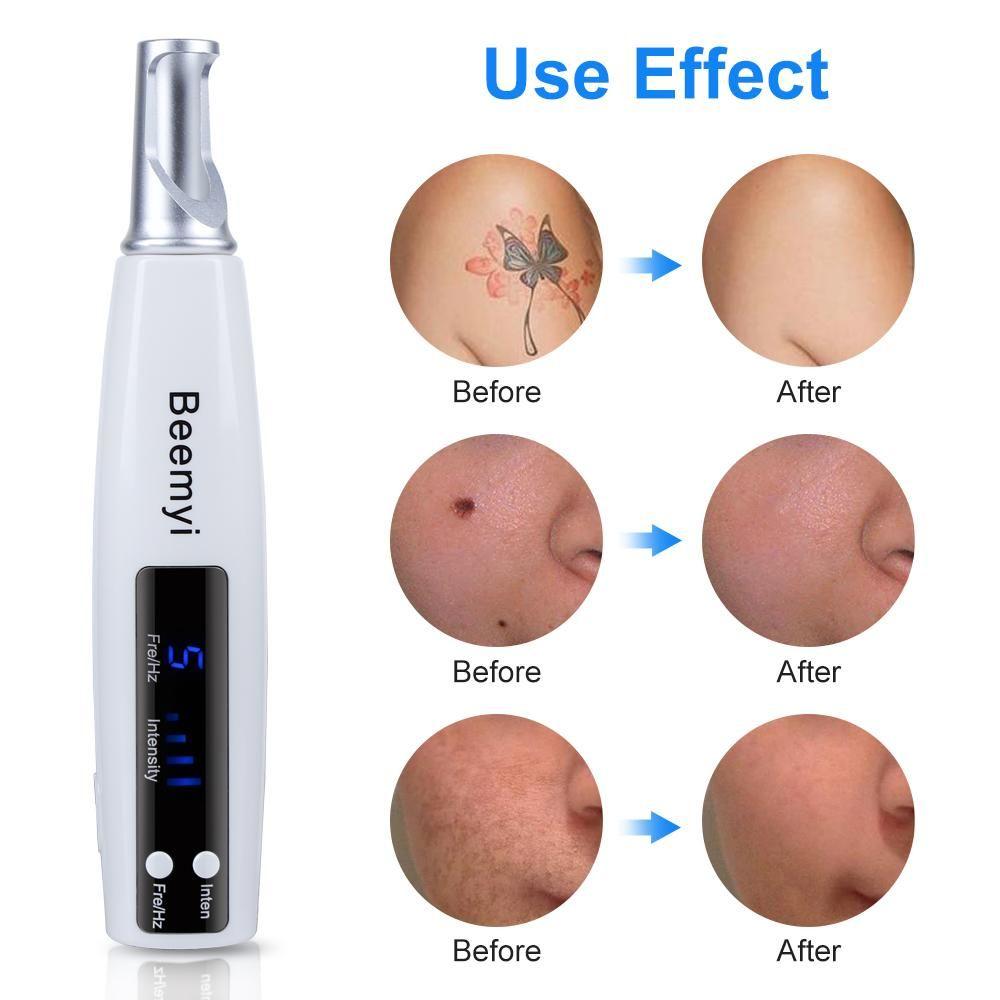 Picosecond Laser Pen Blue Light Therapy Pigment Tattoo Scar Mole Freckle Removal Dark Spot Remover Machine Laser Picosecond Pen