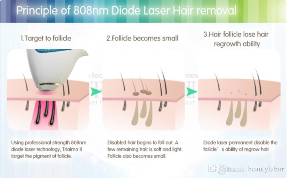Fast And Easy Laser Epilation Ipl Depilatoin Hair Shaving For
