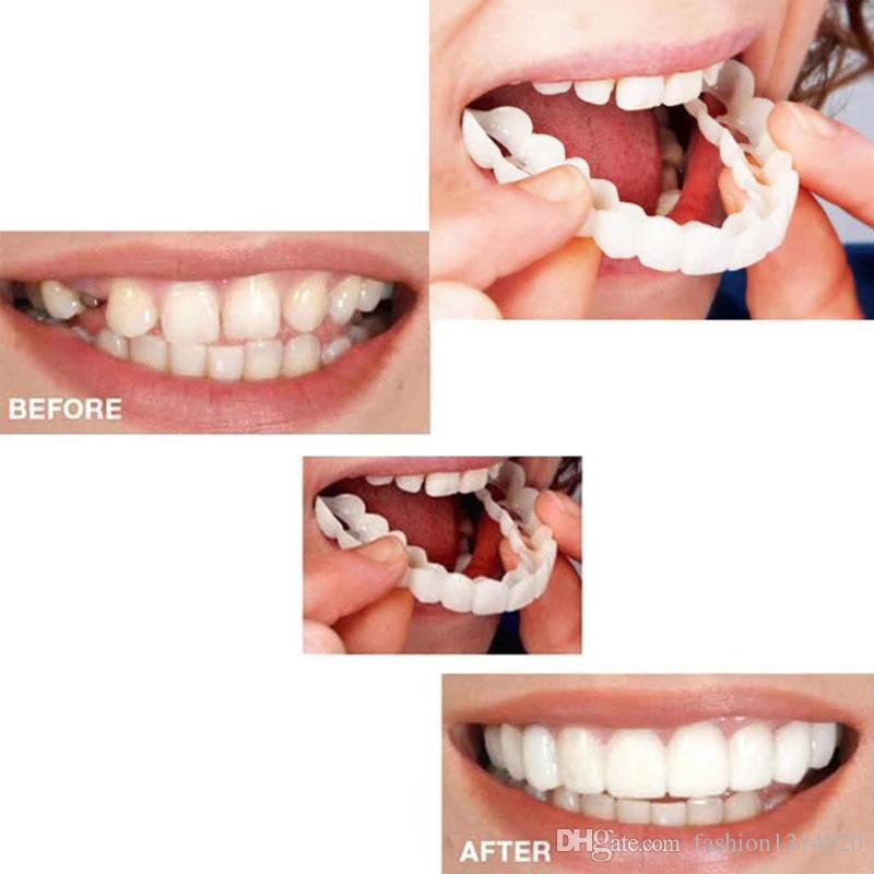 Belle Smile Impiallacciature Denti Bretelle Comfort Fit Cosmetico Resistenza all'usura Denti Protesi denti Top Simulazione di impiallacciature cosmetiche