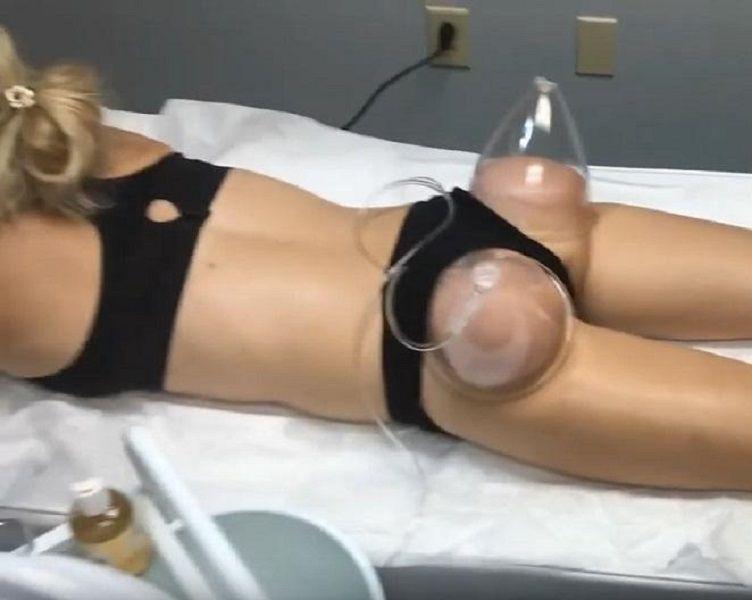 유방 엉덩이 향상 펌프 리프팅 진공 마사지 기계 엉덩이 컵 컵 유방 확대 확대 마사지 기계