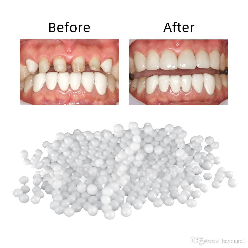 صلح أسنان 100 غرام وضع أسنانه وفجوة أسنان لاصقة لاصقة لطقم الأسنان الراتنج الصمغ الصلب بشكل مؤقت