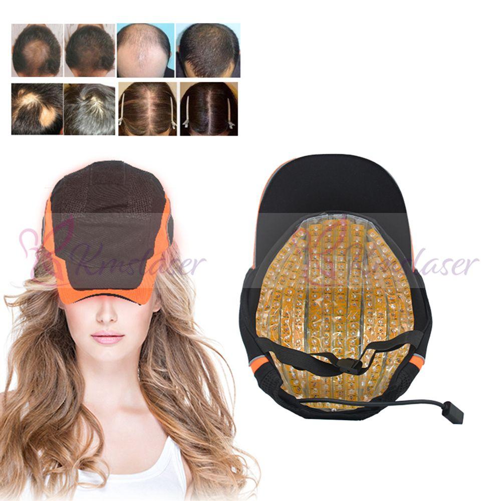 276 조각 레이저 다이오드 모자 성장 모발 재성장 LLLT 치료 Hairloss 치료 헬멧