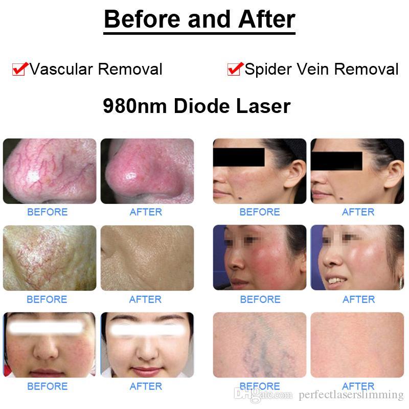 tratamento de veias faciais a laser