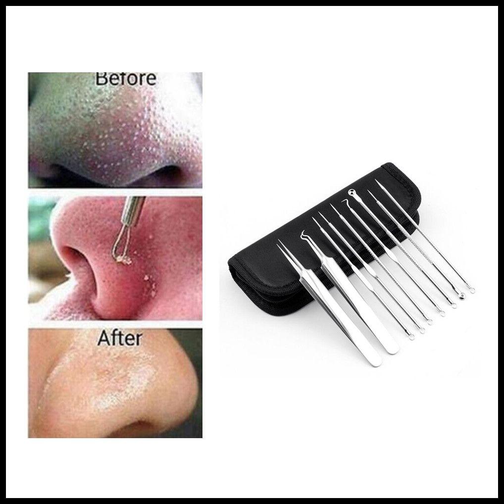 Silber Stainless Mitesser Komedonen Akne Blemish Extractor Remover Pickel Pin Kosmetik Gesundheit Beauty Care-Nadel-Werkzeug