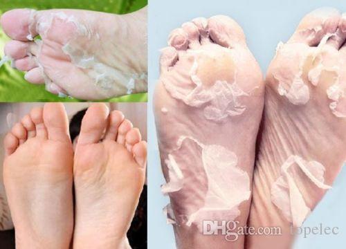 peau seche pied
