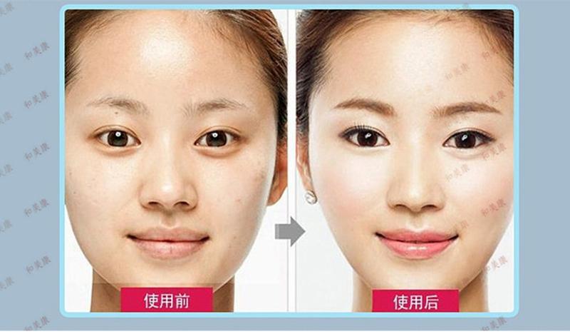 Тонкая маска для лица, маска для похудения, уход за кожей лица, подбородок, щека для похудения v-line лифтинг-повязка для лица Новая тонкая маска, против выпадения волос, маска для лица
