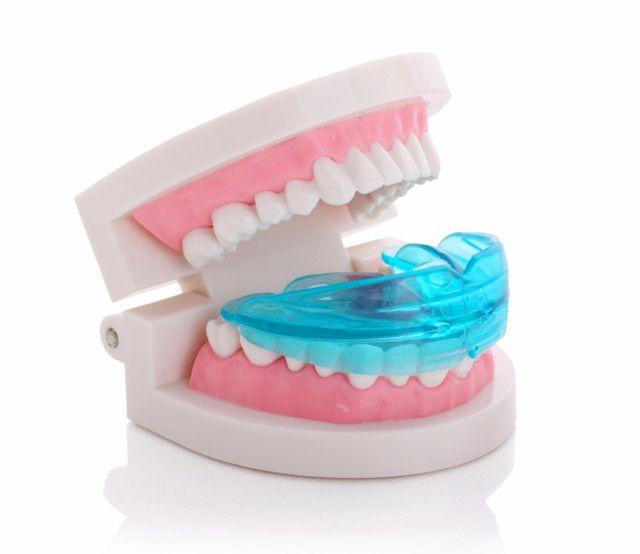 Wholesale Buck Teeth Braces Correction Dental Braces Orthodontic ...