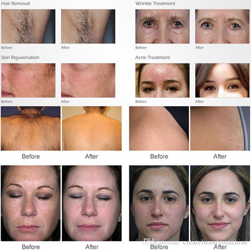 Most popular elight vascular removal machine opt shr hair removal ipl skin rejuvenation UK imported xenon lamp