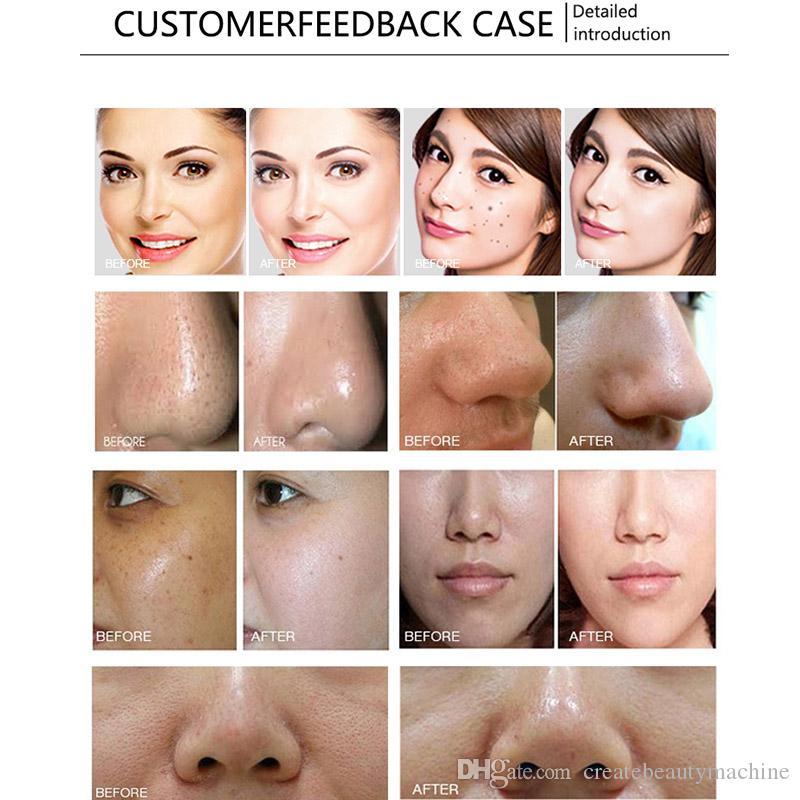 Hydra facial machine diamond dermabrasion facial bio-lifting machine facial cleaning skin rejuvenation for salon use
