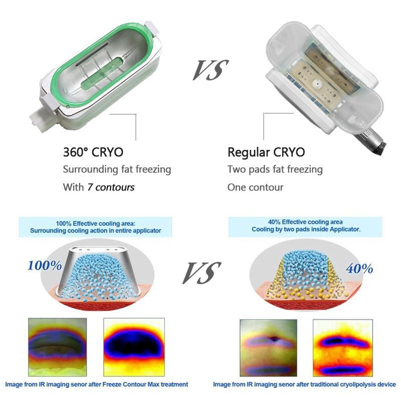Модернизированный Zeltiq Cryolipolysis Coolsculpting машина Криотерапия Жир Замораживание тела для похудения Lipo Лазерная жира Reduction 40K Кавитация машина