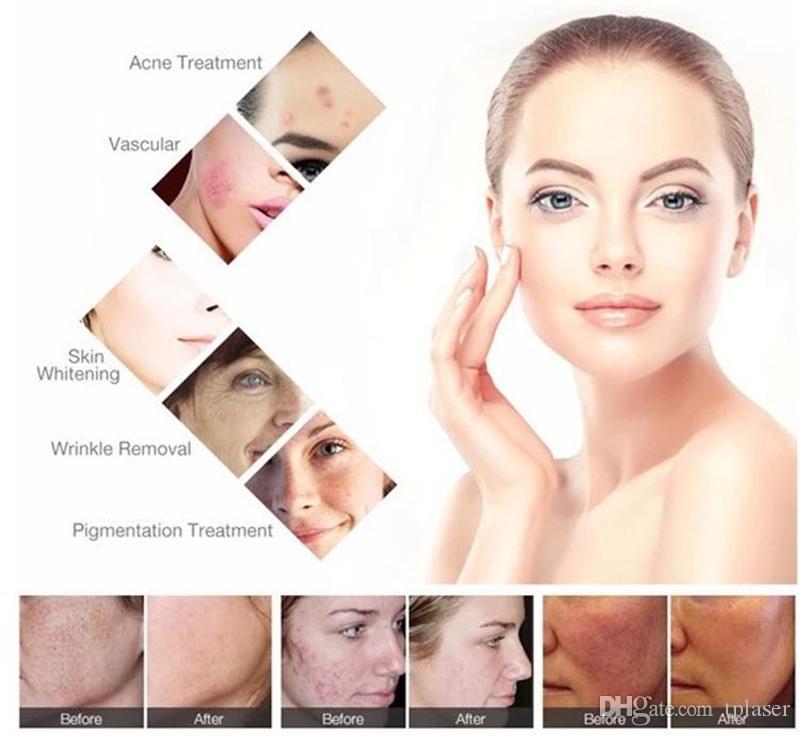 3 Filtros cabelo do laser e luz IPL remoção Removal máquina SHR IPL cabelo Elight rejuvenescimento da pele pele aperto Tratamento Beauty Machine