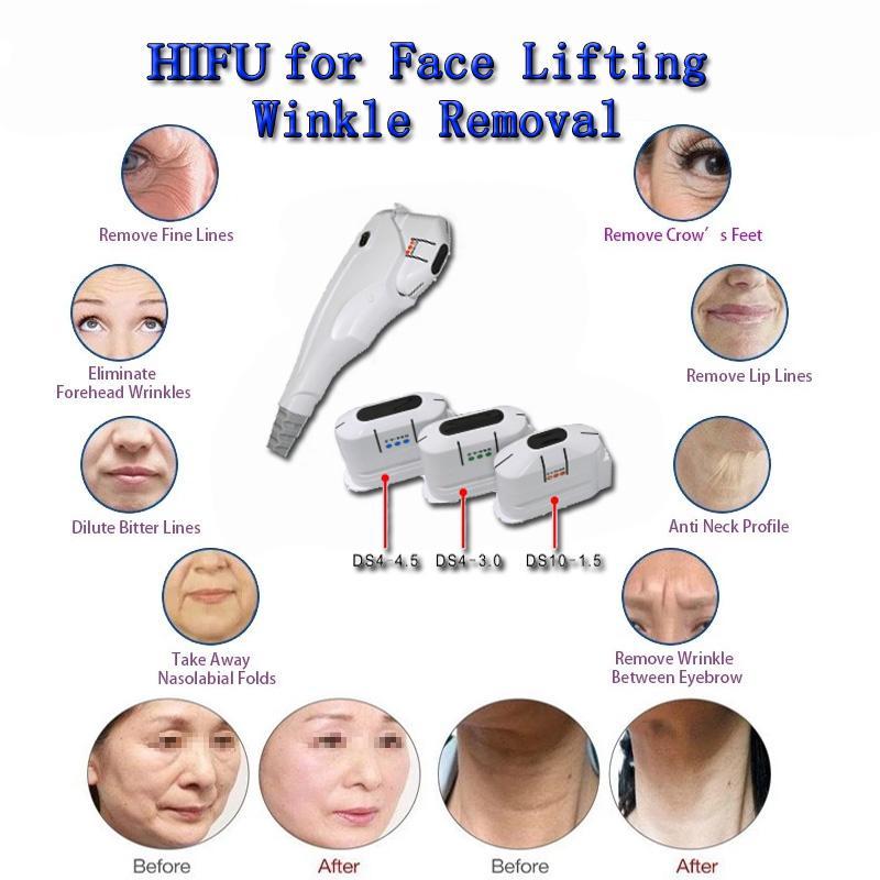 Peau Rajeunissement Beauté Machine Best Hifu Skin Serrer Visage Machine LIPOSONIX FAT Réduction Body Machine minceur
