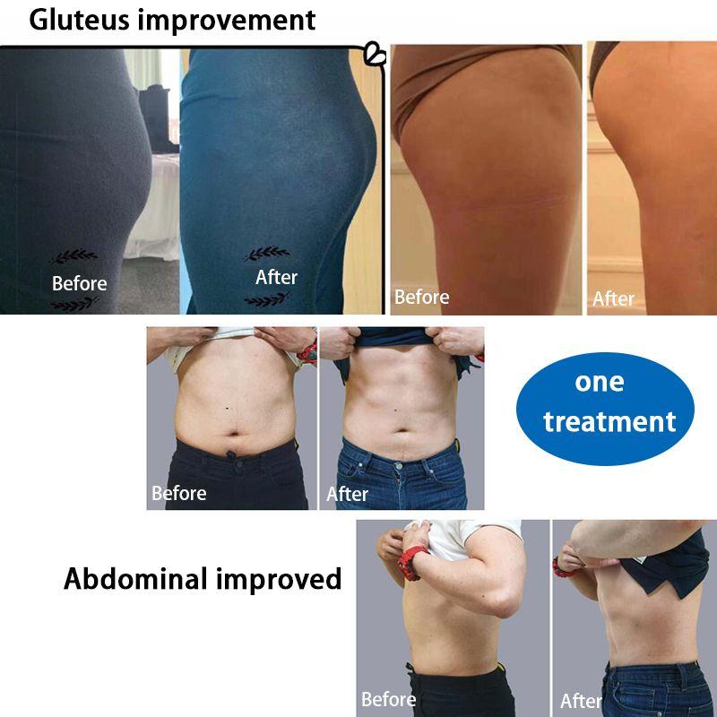 2020 Neueste Body Contour-Technologie EMSlim Körper schlank Muskelstimulation Focused Elektromagnetische Emslim Geräte freies Verschiffen