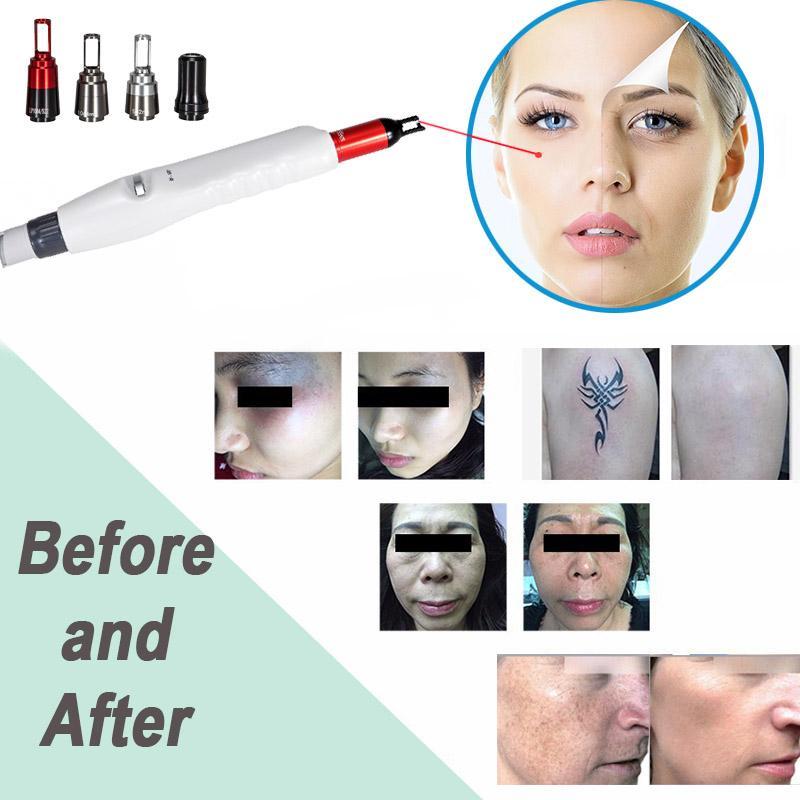 Taşınabilir pikosaniyelik dövme silme lazer makinesi q nd yag piko lazer pigment kaldırma piko lazer nokta sivilce kaldırma ücretsiz sevkiyat anahtarlamalı