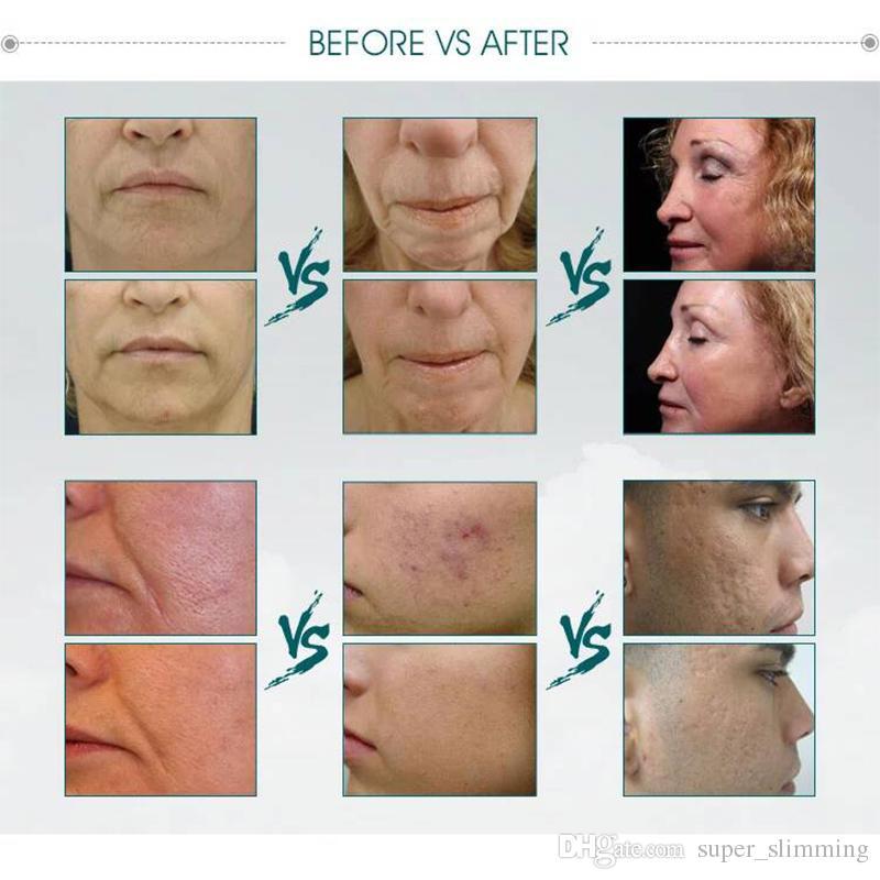 Best facial beauty equipment radiofrequency micro needle rf fractional laser skin rejuvenation salon machine rf microneedling acne treatment