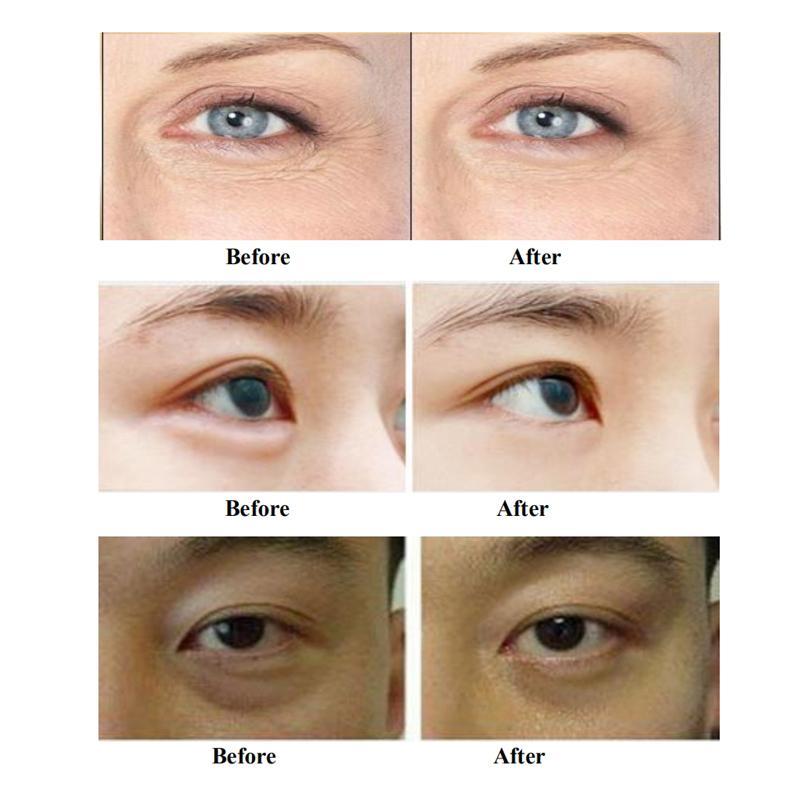 휴대용 RF 장비 주름 제거 피부 회춘 얼굴 리프팅 페이셜 기계 홈 살롱 CE와 무료 배송