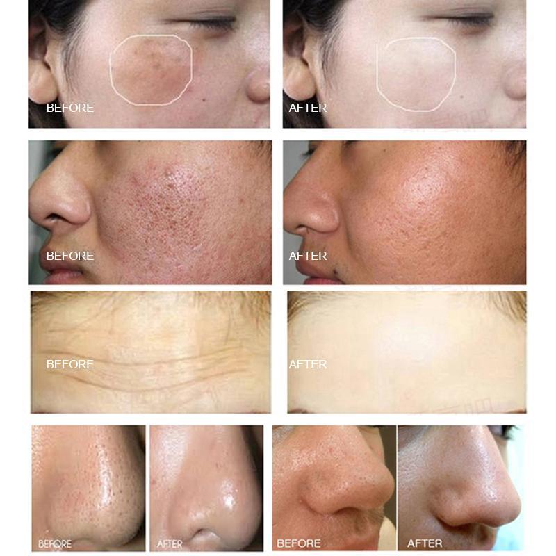 2021 Machine hydrafacienne Dermabrasion de la peau Nettoyage de la peau Hydrofacial Face à l'échographie RF Hydra Microdermabrasion d'oxygène