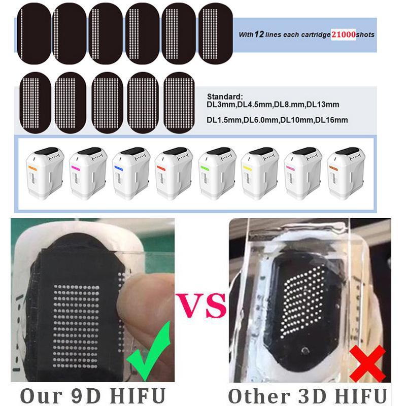 9D HIFU minceur HIFU Beauté HIFU Équipement de serrage vaginal 2 poignées 10 Catridées CE Livraison gratuite