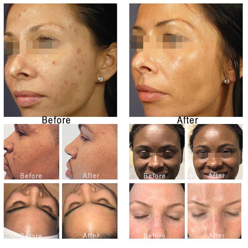 2021 Hydra مياه الوجه الدماغ الدقيقة العميقة التطهير العميق آلة Hydrafacial الأكسجين Mesotherapy بندقية RF رفع الجلد تجديد الهيدروججان