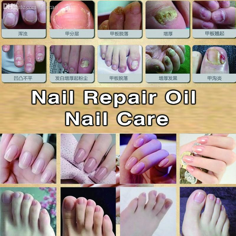 Wholesale Snazii Nail Gel Fungal Nail Oil Essence 30ml Treatment Of ...