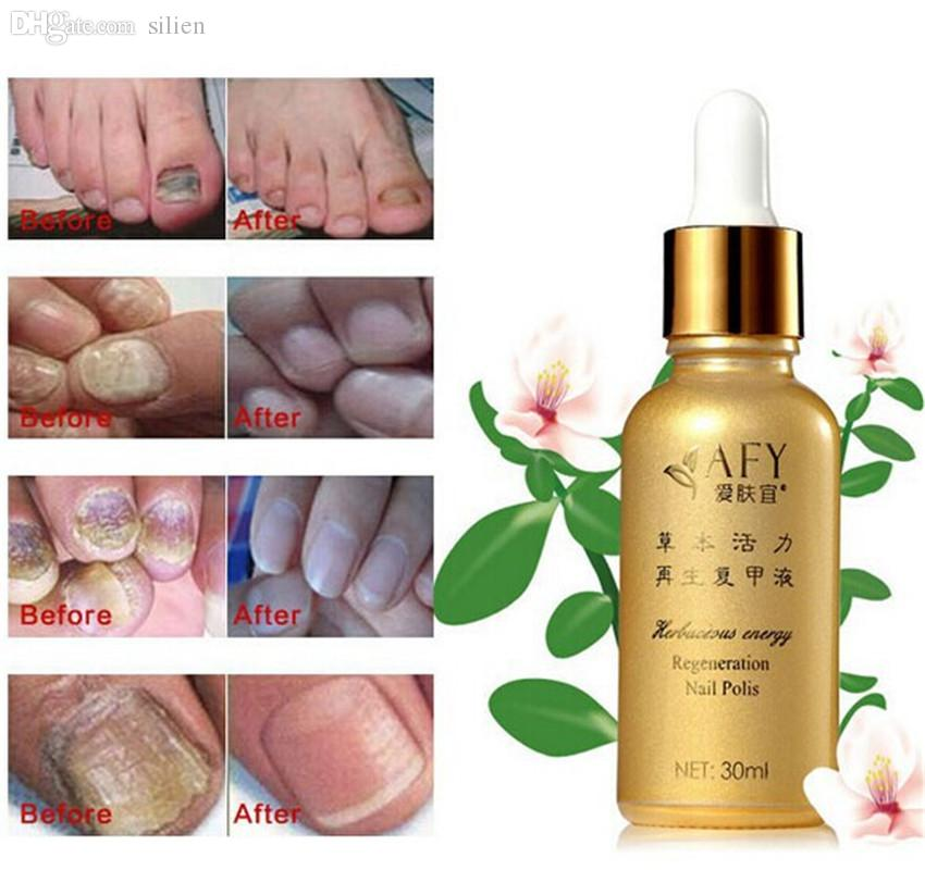 Wholesale Fungal Nail Ringworm Treatment Essence Oil Hand Foot Toe ...