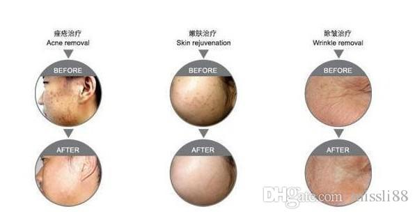 Brand new LED Photon Mask skin care mask pdt led skin rejuvenation machine for facial wrinkle acne treatment
