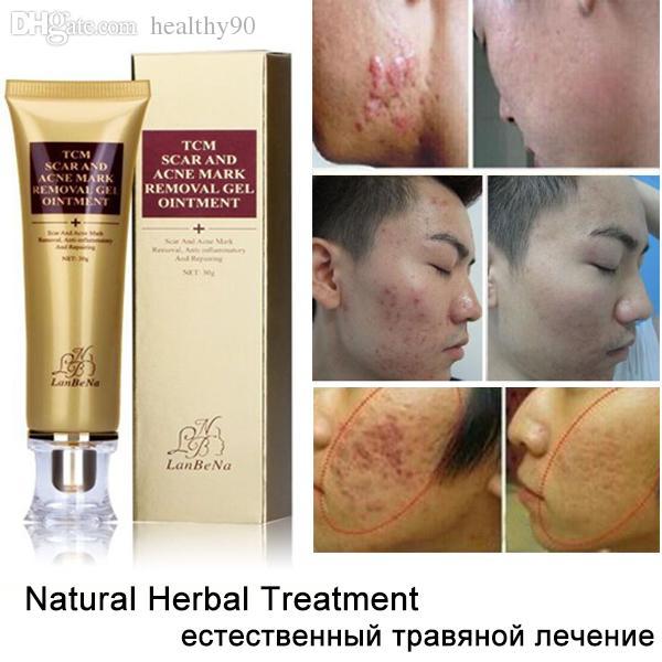 Facial Scar Removal Cream 21