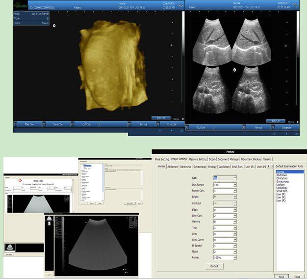 Caja de escáner de ultrasonido CEISO con tamaño pequeño y función potente / máquina de caja ultrasónica / dispositivo de caja de eco humana o VET estable o ecografía por PC