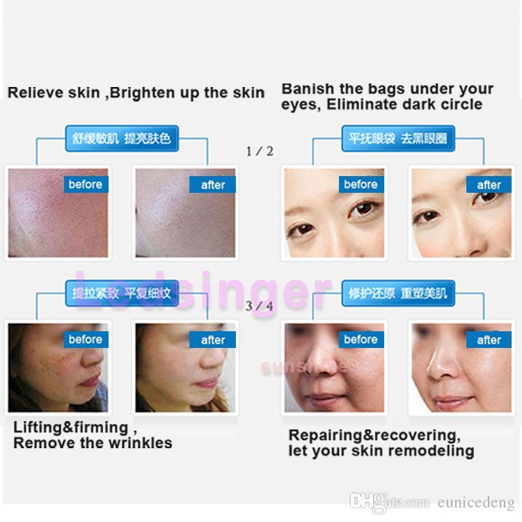 540 titane Derma Micro système de thérapie de dermatologie à aiguilles rouleau Microneedle Dermaroller 0.2mm 0.3mm 0.5mm 1.0mm 1.5mm