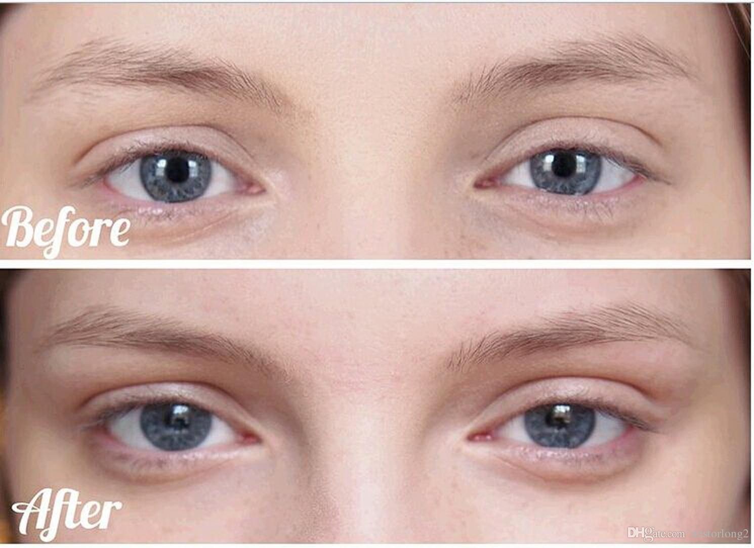 جودة عالية جديد الأصلي إزالة عراف نظام أداة الجمال يدويا خيوط الوجه والجسم لنزع الشعر