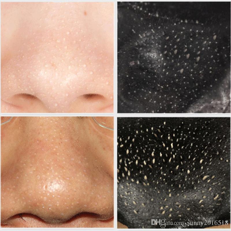 Sıcak Satış Yeni Mineral Çamur Burun Siyah Nokta Gözenek Şerit Temizleme Temizleme Burun Siyah Nokta Remover Maske Gözenek Temizleyici Sağlık 6 ml Toptan