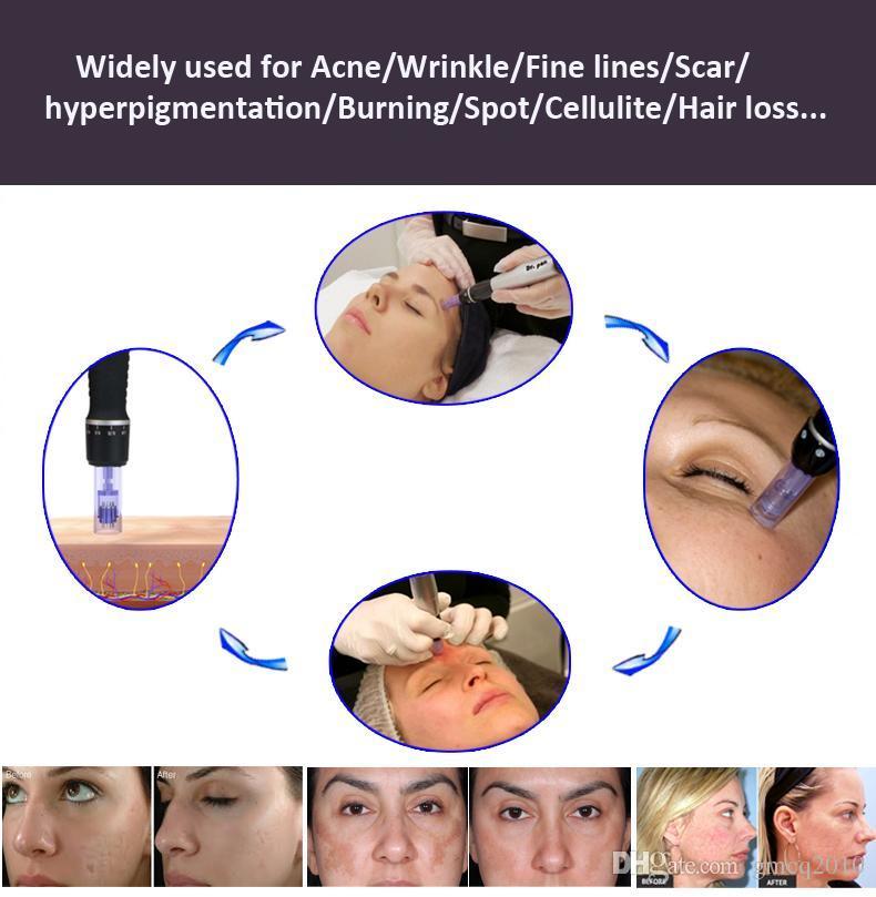 6 Velocità Derma Penna Electic Auto Micro Ago Terapia Dr.pen vibrazione Dermapen Dermastamp 12 Aghi Penna