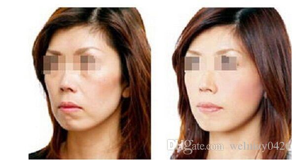 2017 nuovo prodotto focalizzato rf! rf lifting lifting ringiovanimento del viso