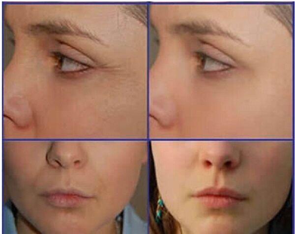 newest 6 in 1 skin rejuvenation rf ultrasonic cavitation machine body slimming