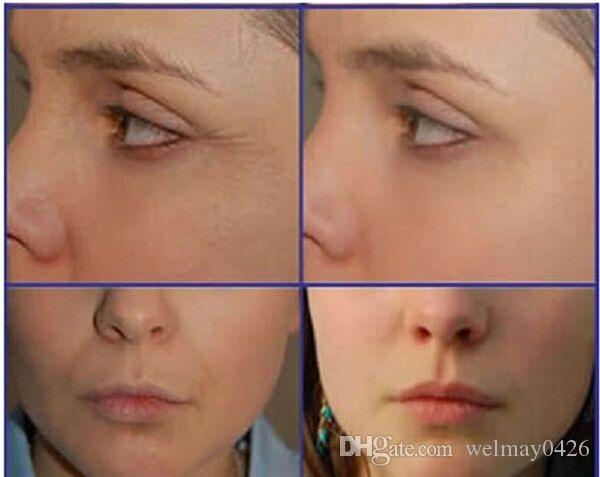 pelle lifting istantanea del viso che stringe il dispositivo thermagic rf spa beauty