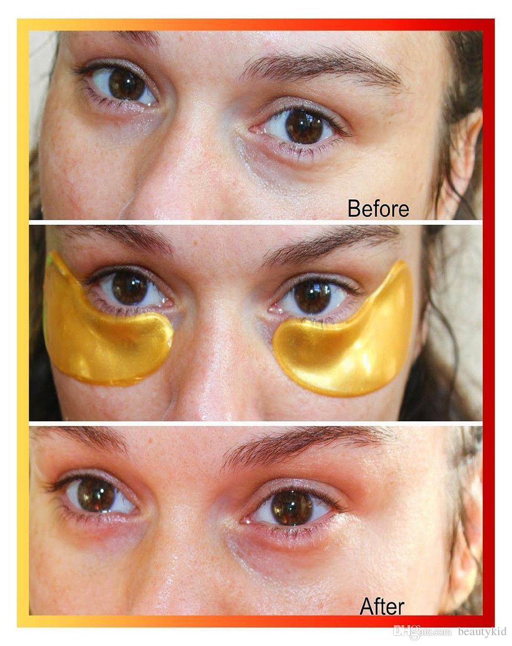 eye mask for dark circles
